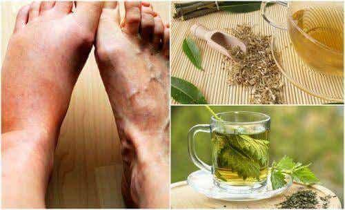 5 σπιτικές θεραπείες για να μειώσετε τα επίπεδα ουρικού οξέος