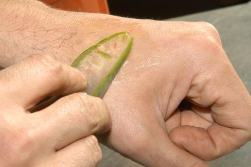 Άνδρας τοποθετεί κομμάτι αλόη βέρα στο χέρι του