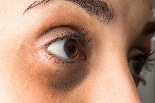μάτια με μαύρους κύκλους σημαδια ορμονικής αστάθειας