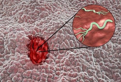 Βακτηριακή λοίμωξη στομάχου
