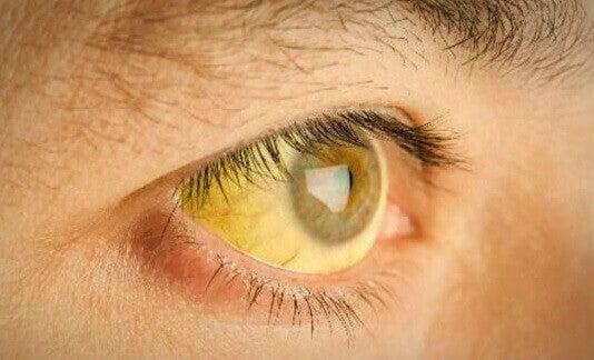 Σημάδια φλεγμονής στο συκώτι - Κιτρινισμένο μάτι