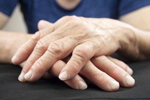 Σημάδια καρδιακών νόσων και φλεγμονή αρθρώσεων