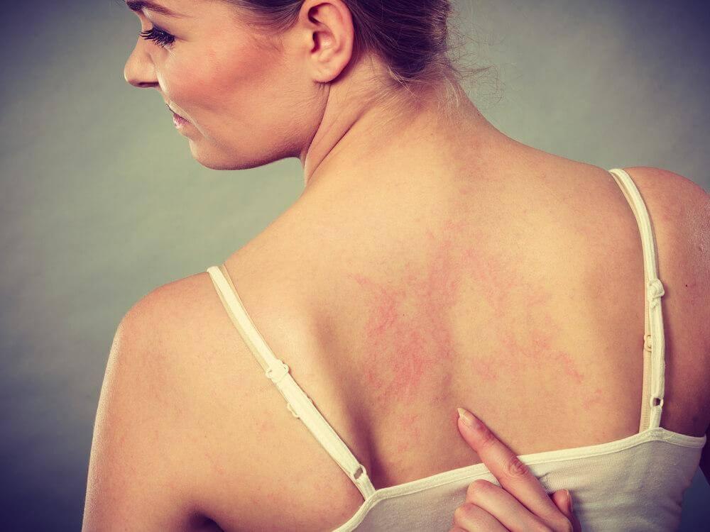 κόκκινες γραμμές στο δέρμα γυναίκας