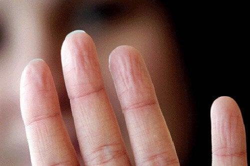 9 προβλήματα υγείας που φανερώνουν τα χέρια μας