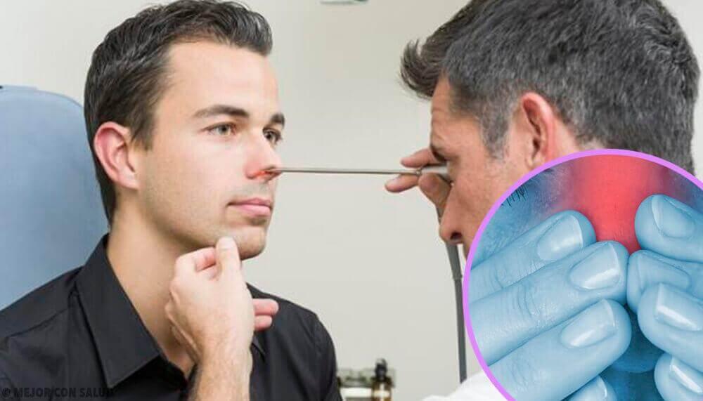 Συνταγές με παντζάρι - Γιατρός ελέγχει τη μύτη ασθενούς