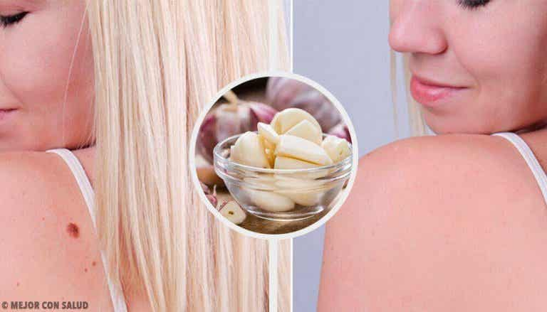 9 τρόποι για την γρήγορη αφαίρεση των ρόζων του δέρματος