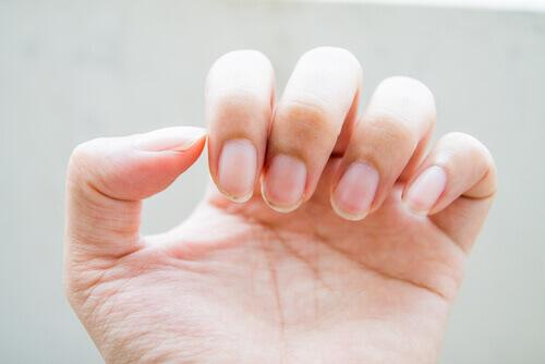 Φυσικές θεραπείες για τα προβλήματα με τα νύχια, σπασμένα νύχια