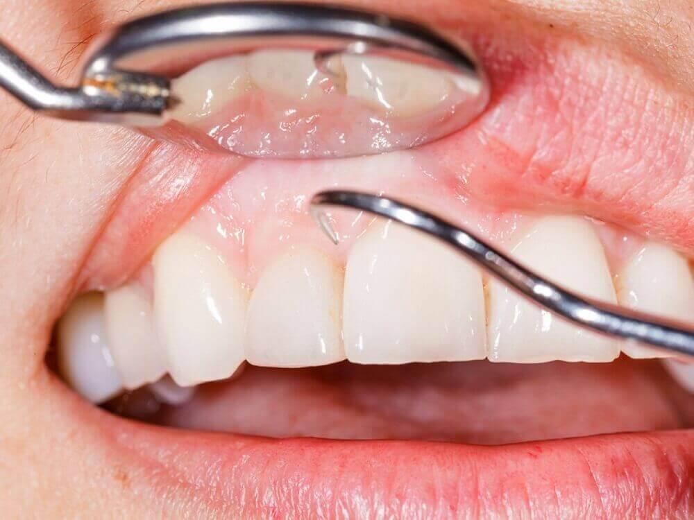 Πράσινο μήλο - Γιατρός ελέγχει τα δόντια ασθενούς