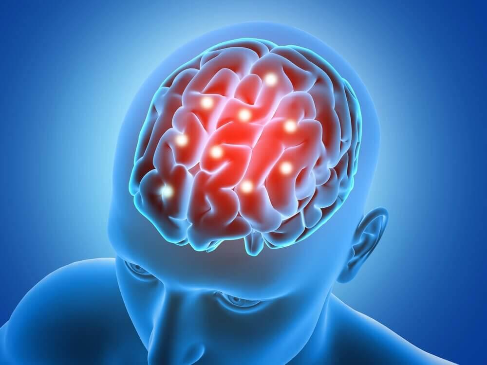 Πράσινο μήλο - Ανθρώπινος εγκέφαλος