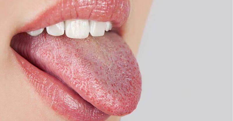 Τα 10 αρχικά συμπτώματα του διαβήτη που δε μπορείτε ν' αγνοήσετε, ξηροστομία και δίψα