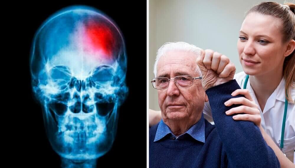 Μικρό εγκεφαλικό επεισόδιο: τα συμπτώματα-κλειδιά