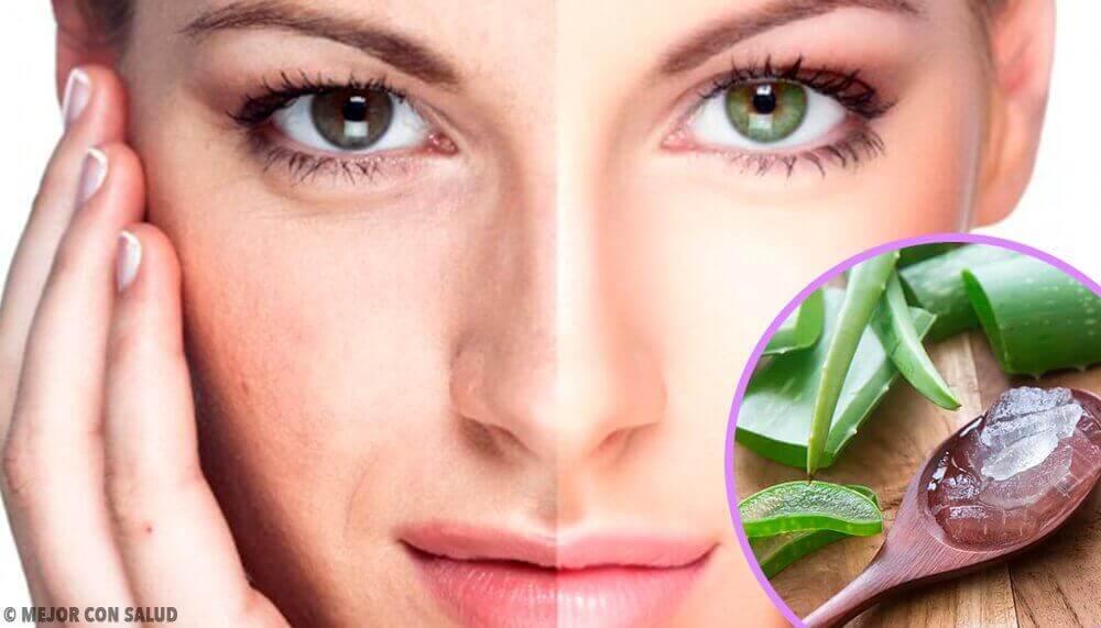 4 απλές μάσκες προσώπου για τη θεραπεία των ρυτίδων
