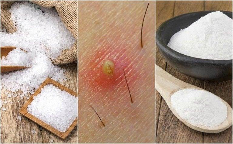 5 φυσικές θεραπείες για τις τρίχες που φυτρώνουν προς τα μέσα