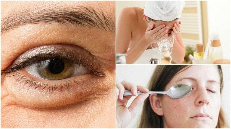 6 φυσικοί τρόποι για να μειώσετε τις σακούλες κάτω από τα μάτια