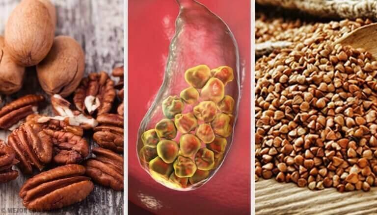 Αντιμετώπιση της χολολιθίασης με αυτές τις 6 τροφές