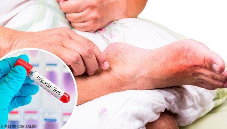 5 συχνές αιτίες του υψηλού ουρικού οξέος