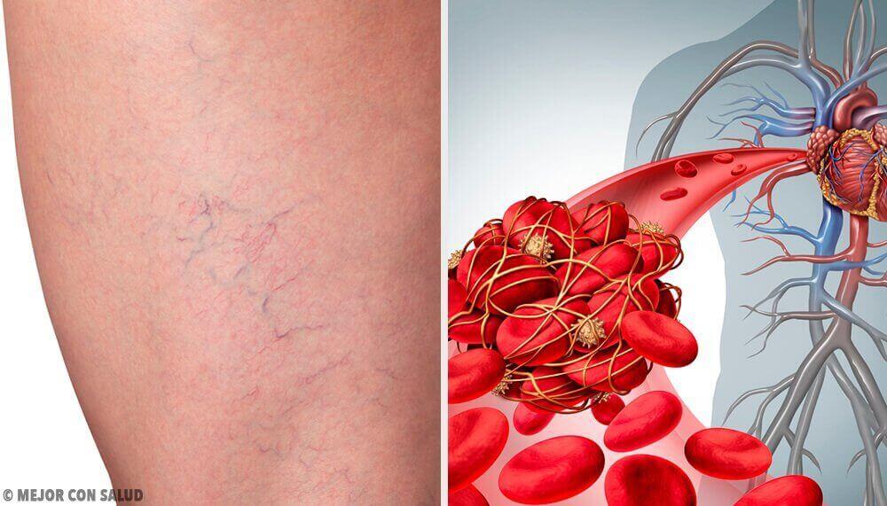 Oι 3 καλύτερες φυσικές θεραπείες για να αντιμετωπίσετε τη φλεβίτιδα