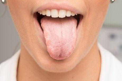 στόμα, άσπρη γλώσσα