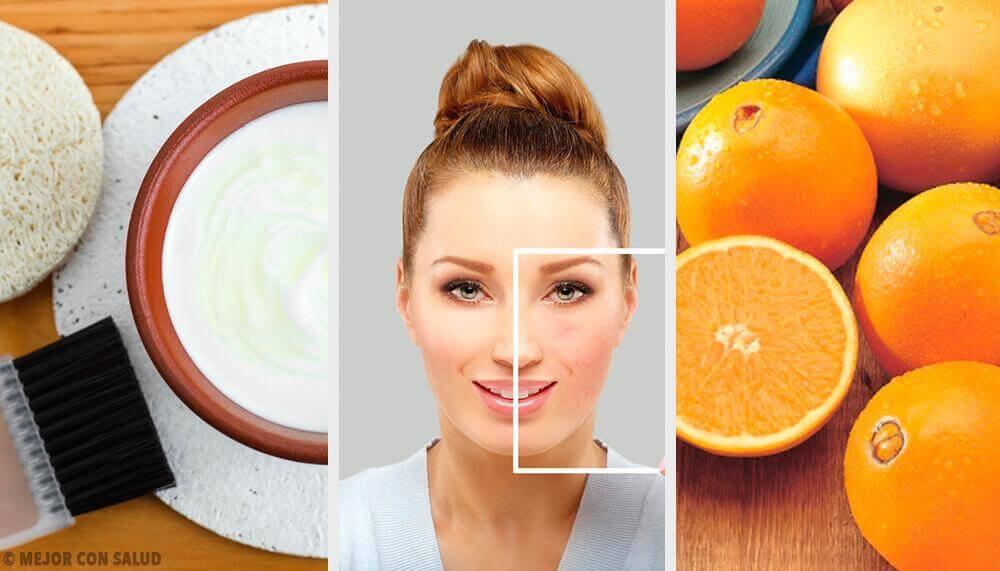 Φυσικοί τρόποι για ν' απαλλαγείτε από τις ατέλειες του δέρματος