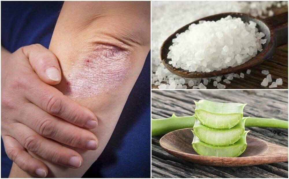 Καταπολεμήστε τους μύκητες με πέντε φυσικές θεραπείες