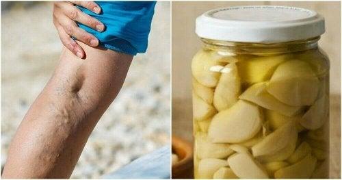 Σπιτική θεραπεία με πορτοκάλι για την αντιμετώπιση των κιρσών