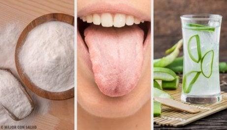 Η άσπρη γλώσσα αντιμετωπίζεται με 7 φυσικές θεραπείες