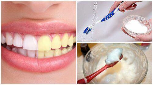 δόντια κίτρινα και άσπρα οδοντόβουρτσες