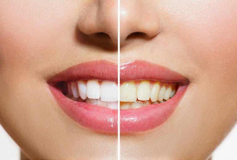 Πώς θα κάνετε λεύκανση δοντιών με φυσικό τρόπο