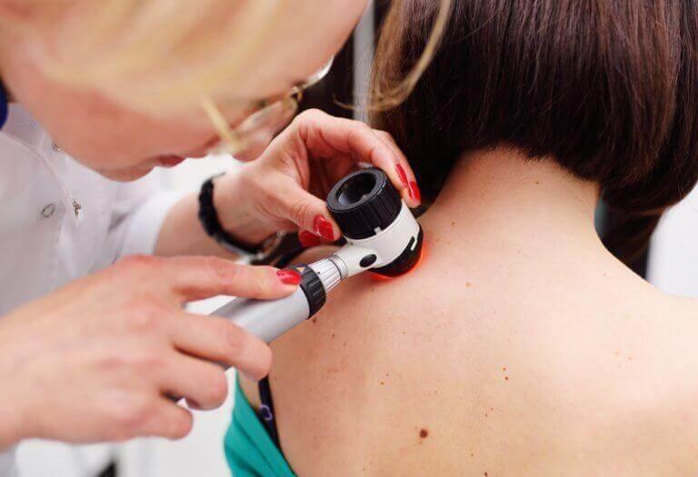 εξεταση δερματος - σημάδια στο πρόσωπό σας