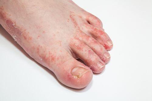 15 θεραπείες για να γιατρέψετε τους μύκητες του δέρματος