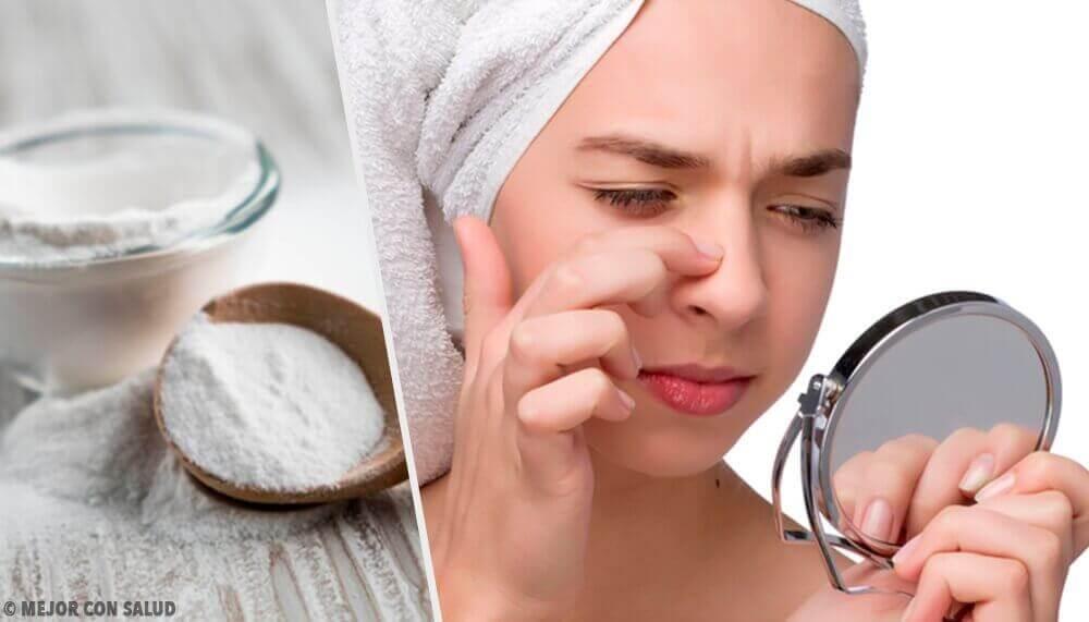 Θεραπείες με μαγειρική σόδα - Μαγειρική σόδα και γυναίκα κοιτά το πρόσωπό της στον καθρέφτη