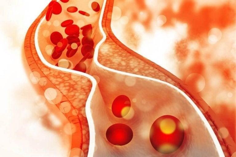 Ελέγξτε την κακή χοληστερίνη με μια υγιεινή διατροφή