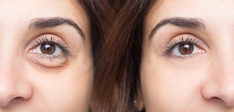 Νεανική εμφάνιση - Γυναίκα με σακούλες στα μάτια