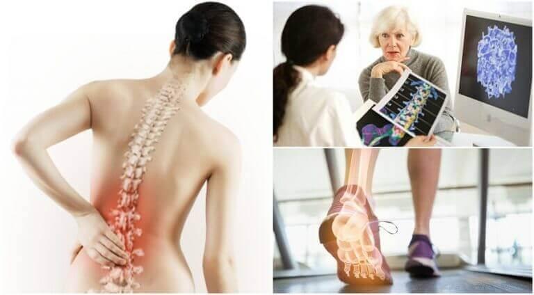 Πόνος στην πλάτη - οστεοπόρωση
