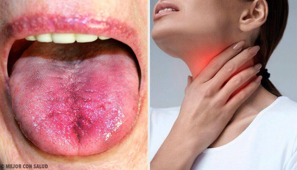 6 τρόποι να καταλάβετε αν έχετε πλάκα στον λαιμό σας