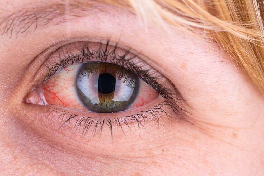 7 συμβουλές για να καταπολεμήσετε την επιπεφυκίτιδα με φυσικό τρόπο