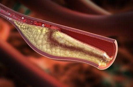 δίαιτα με λεμόνι Τομή αρτηρίας με χοληστερίνη