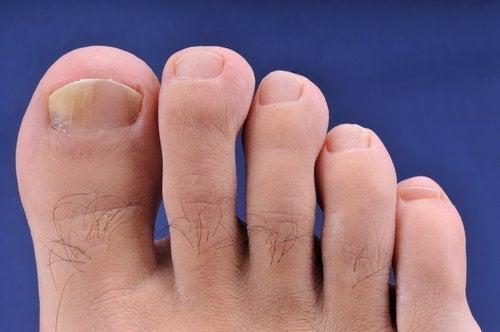 Δάκτυλα ποδιού με μυκητίαση- προβλήματα που προκαλούνται στα πόδια από τις σαγιονάρες