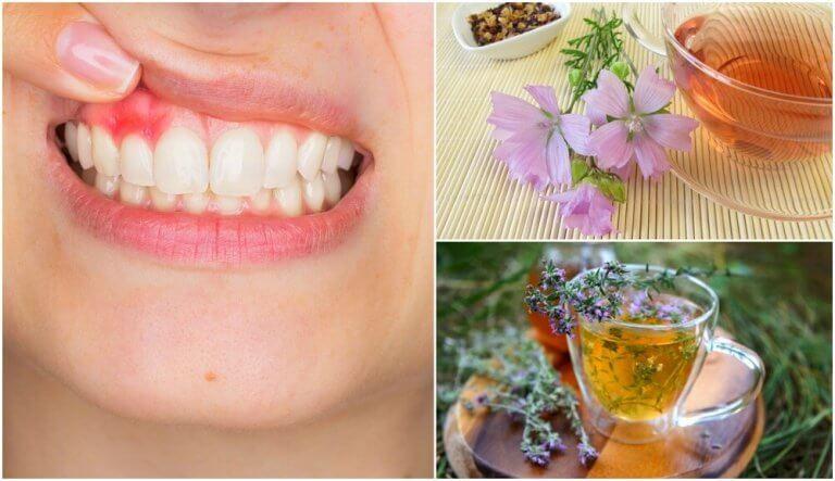 5 φυσικές θεραπείες για την ουλίτιδα που μπορείτε να δοκιμάσετε στο σπίτι