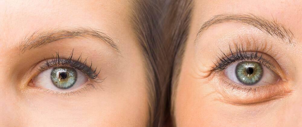 Συσφίξτε τα πεσμένα σας βλέφαρα με αυτά τα 5 φυσικά συστατικά