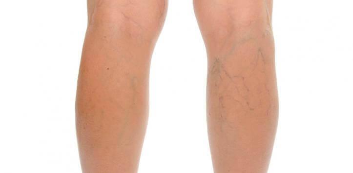 πόδια με κυταρρίτιδα - την αντιμετώπιση της κυτταρίτιδας