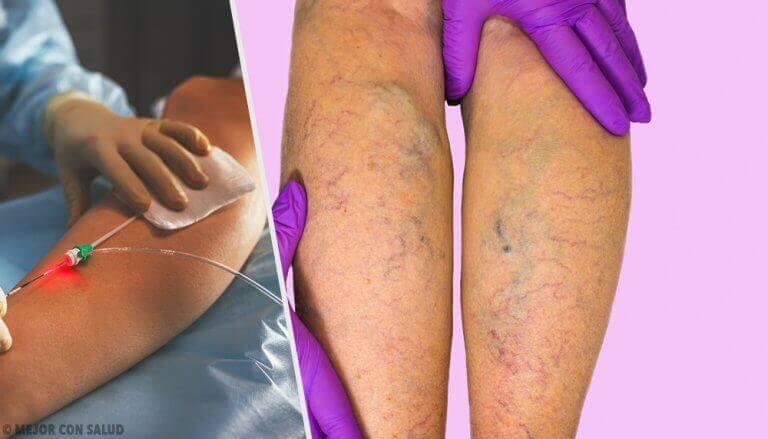 Κιρσοί στα πόδια: Τι είναι και πως αντιμετωπίζονται;