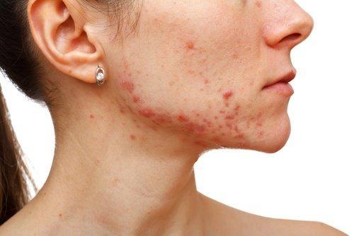 Συμπτώματα συνδρόμου πολυκυστικών ωοθηκών - Γυναίκα με ακμή