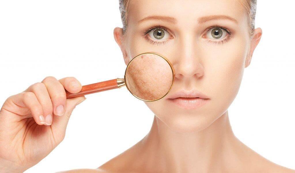 Συμπτώματα συνδρόμου πολυκυστικών ωοθηκών - Γυναίκα με κηλίδες στο πρόσωπο