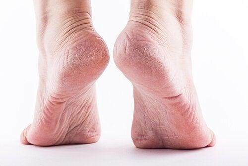 Ενοχλητικοί κάλοι ποδιών