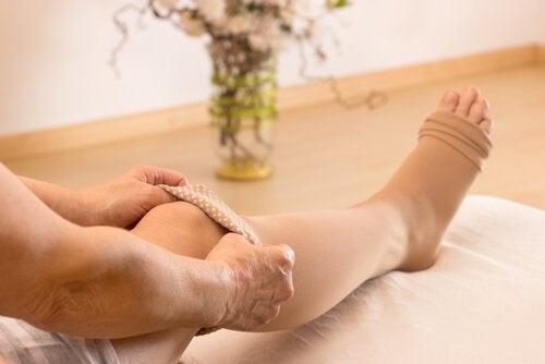 Μείωση των κιρσών με κάλτσες