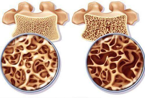 Πώς προλαμβάνεται η οστεοπόρωση; Λαμβάνοντας αρκετό ασβέστιο