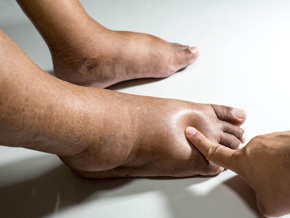 Δίαιτα για την εκκαθάριση των νεφρών - Άτομο με πρησμένα πόδια