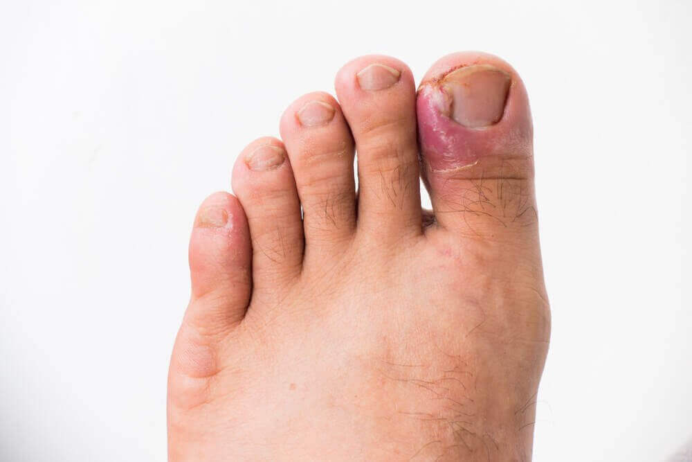 νύχια που μπαίνουν στο δέρμα