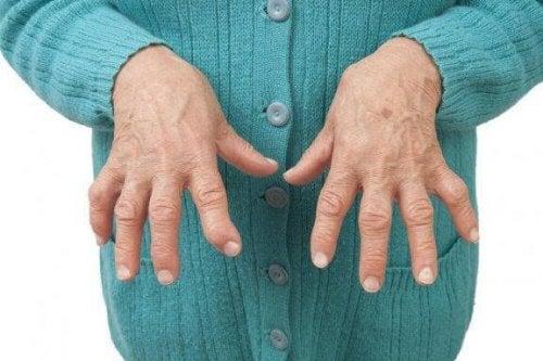 Ανακουφίστε τη ρευματοειδή αρθρίτιδα με φυσικές θεραπείες